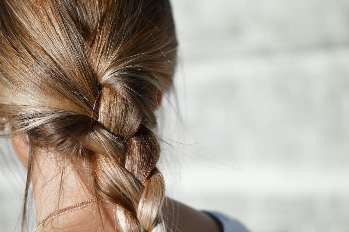 """Mona, 13, alkoi kaljuuntua 7-vuotiaana. """"Se on opettanut minut ymmärtämään ja hyväksymään erilaisuutta"""""""